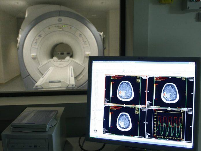 El estudio multicéntrico, abierto, de un año y en curso de Cassava Sciences evalúa la seguridad y tolerabilidad a largo plazo de simufilam 100 mg dos veces al día en 100 pacientes con enfermedad de Alzheimer leve a moderada (EFE)
